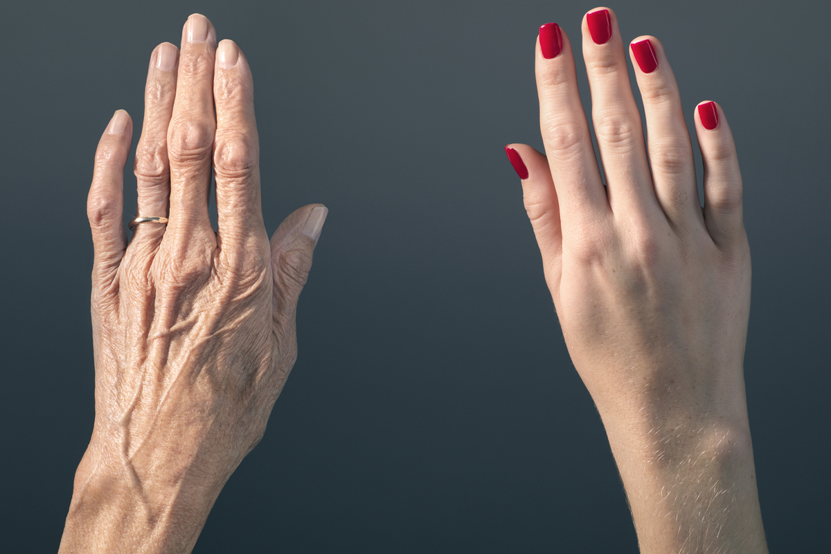vörös foltok jelentek meg a kézen és lehámozódtak)