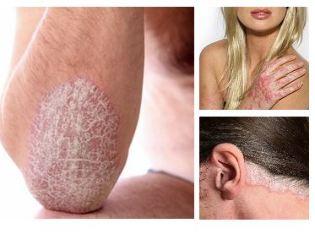 pikkelysömör illóolaj - Természetes krém dermatitisz, ekcéma és psoriasis kezelésére