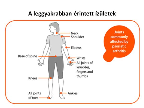 pikkelysömör arthritis kezelése