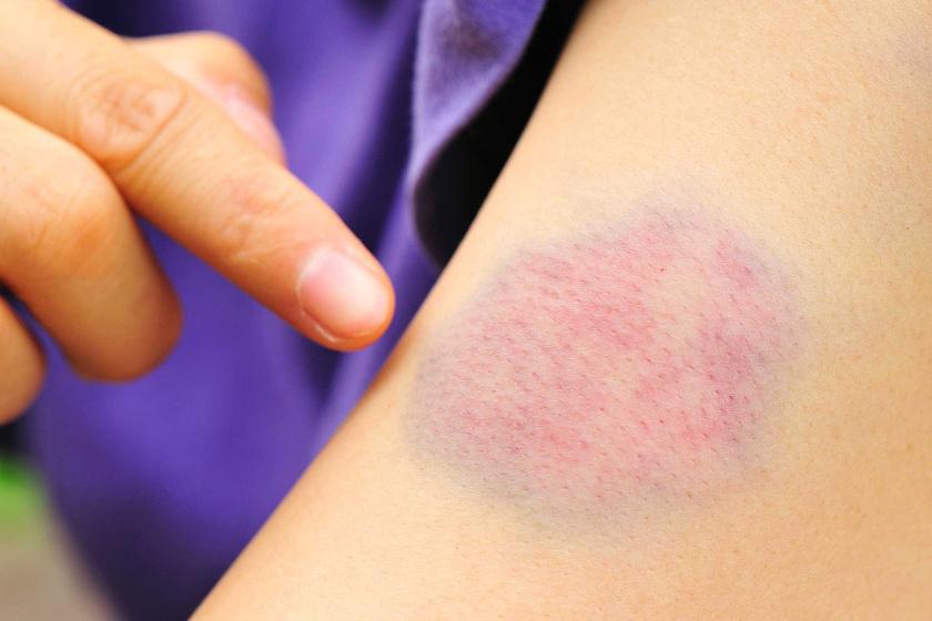 a bőrön lévő piros folt nem fáj