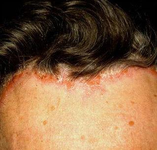 pikkelysömör a fejbőrön népi gyógymódok