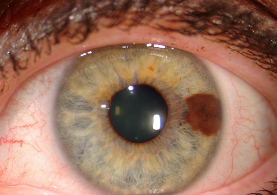 a szemhéjon vörös foltok hámozódnak