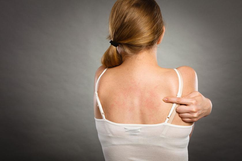 apró vörös foltok tünetei a bőrön népi gyógymód a pikkelysömörhöz