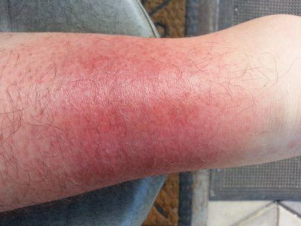 visszeres folt a lábán vörös
