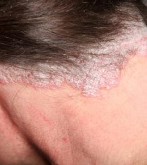 pikkelysömör kezelése a fejen fotó vörös foltok a lábakon, miután a viszketés fáj és megduzzad