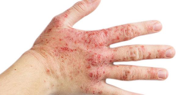 a kezeken piros foltok nedvesednek