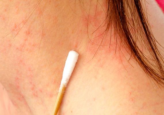 az arcon vörös foltok hámlanak le és sütik meg vörös folt jelent meg a gyomor bőrén