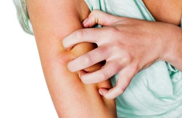 egészségesen élni a pikkelysömör kezeléséről vörös foltok a bőrön fotó és a betegség neve
