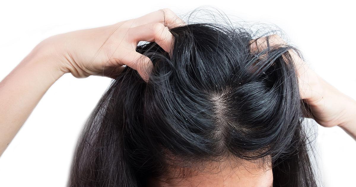 haj pikkelysömörének kezelése népi gyógymódokkal