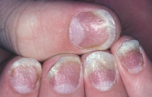 Igazi csodaszer a bőrnek a csipkebogyó olaj - HáziPatika