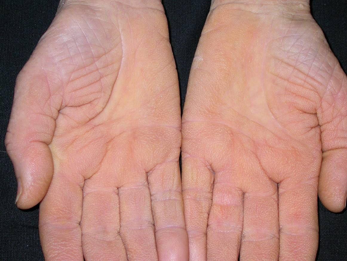 vörös folt jelent meg a kézen, mint egy zúzódás)