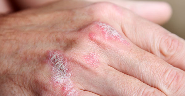 pikkelysömör bőrbetegség kezelése)
