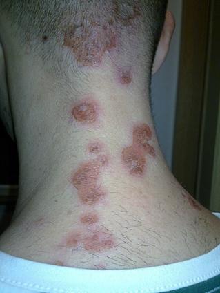 vörös foltok a bőrön homeopátia)