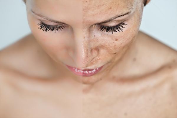 vörös foltok hirtelen megjelenése az arcon pikkelysömör kezelése nha Trangban