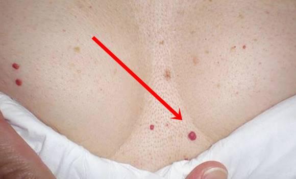 milyen betegségek esetén jelennek meg vörös foltok a bőrön