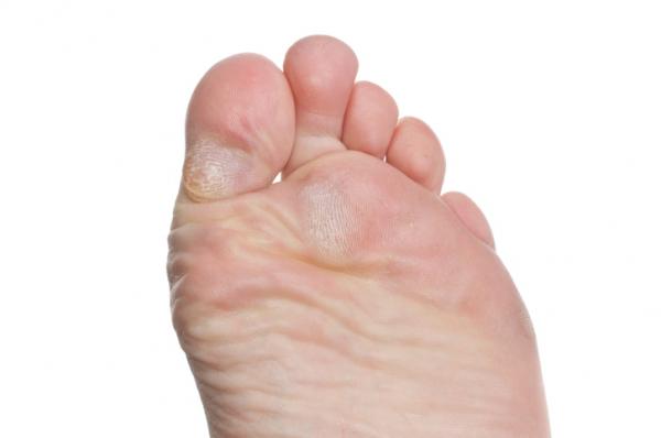 hogyan lehet eltávolítani a vörös foltokat a láb bőrkeményedéséből)