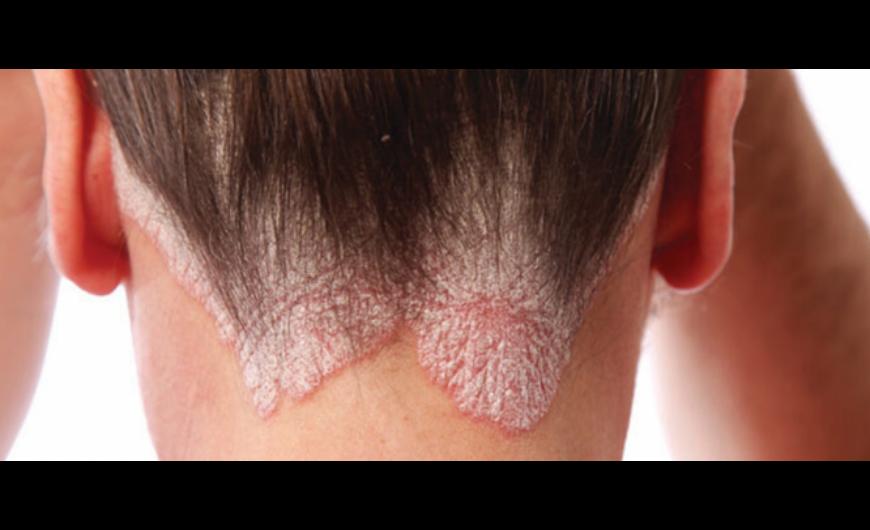 Pikkelysömör – hatékonynak bizonyulhat az új svéd terápia