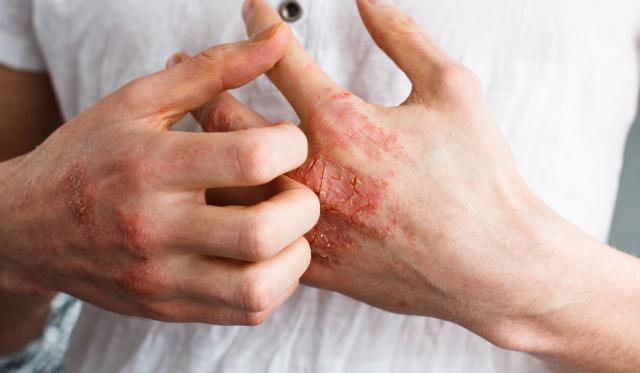 vörös foltok a kezek bőrén hogyan kell kezelni milyen gygyszereket viszket pikkelysömörrel
