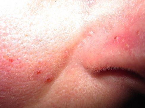 vörös foltok az arcon candidiasis)