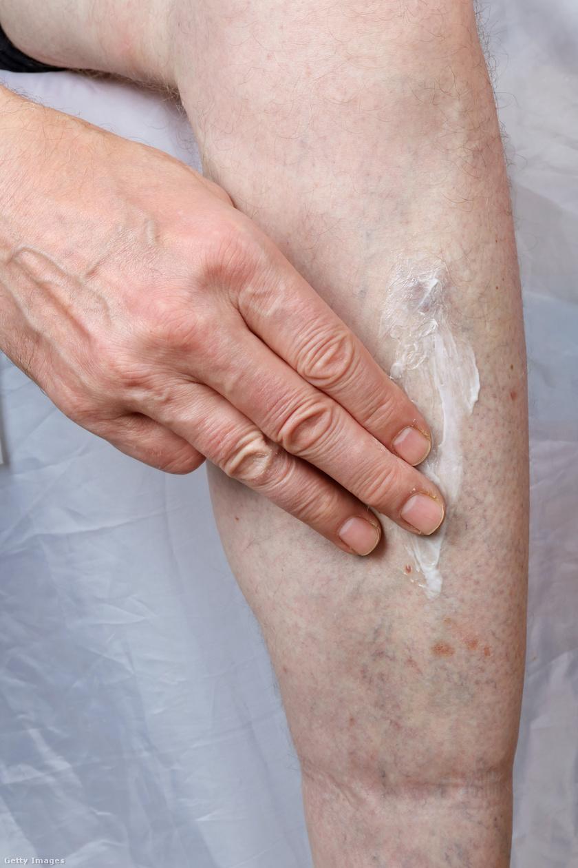 hogyan kezeljük a lábai közötti vörös foltokat hol lehet pikkelysömör gyógyítani