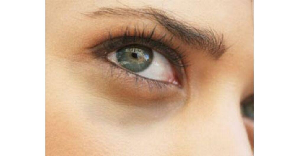 pikkelysömör a szem körüli kezelés