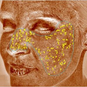 pigmentált vörös foltok az arcfotón Dr. pegano pikkelysömörének kezelési módszere