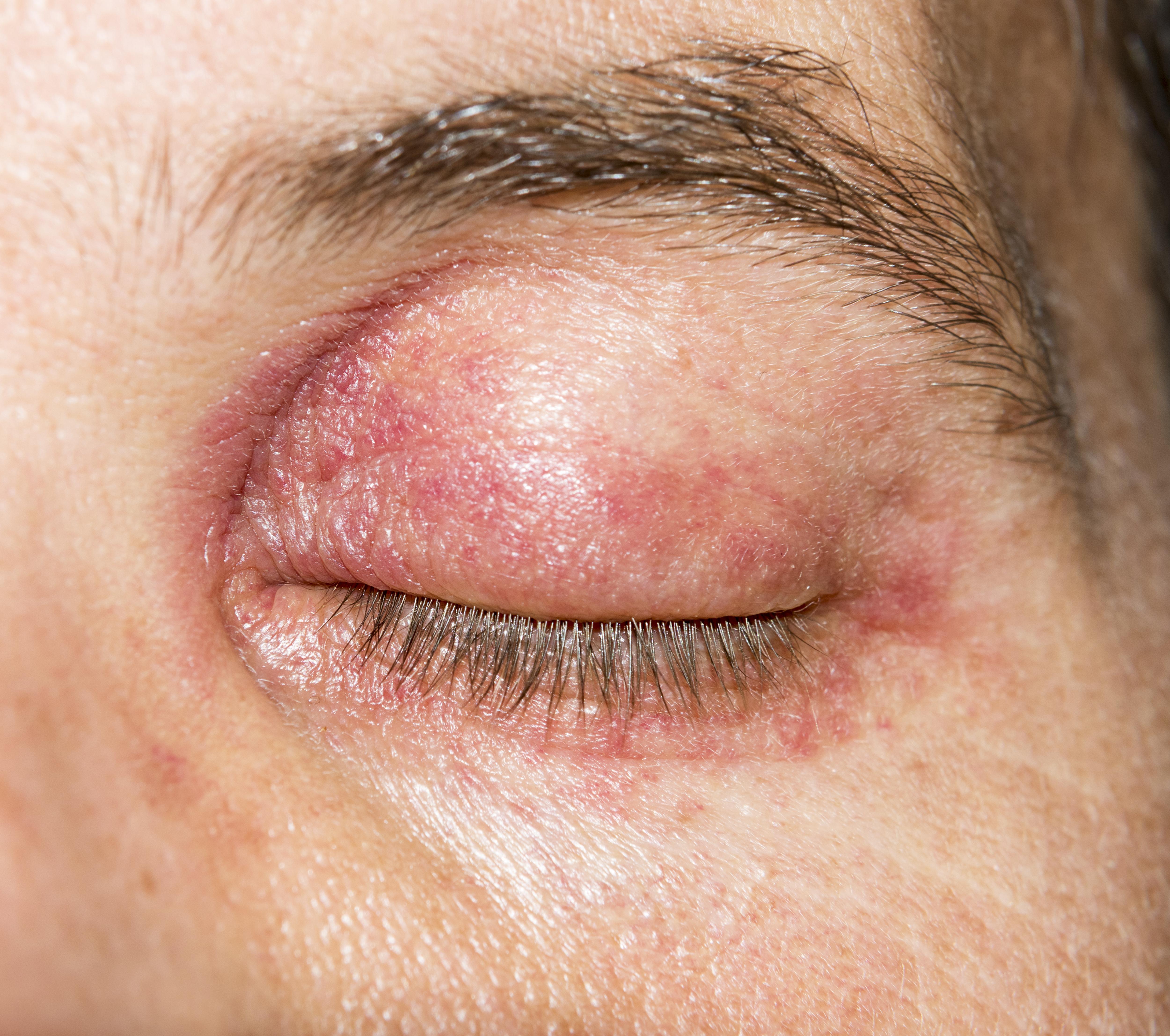 vörös viszkető foltok a szem körül