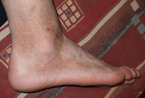 vörös foltok az emberben a lábai között