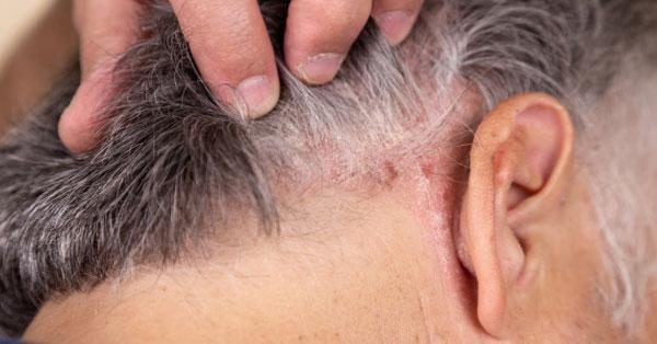 meggyógyult fejbőr pikkelysömör