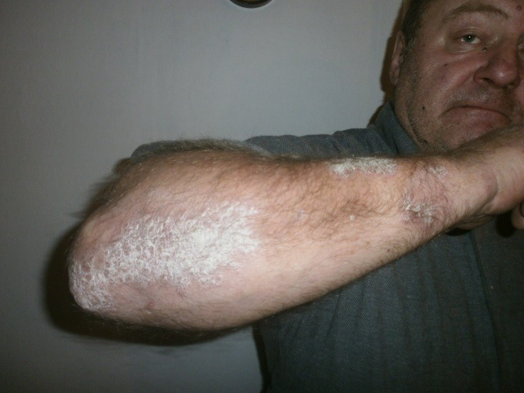 a bőr pikkelysömörének kezelése kenőcsökkel
