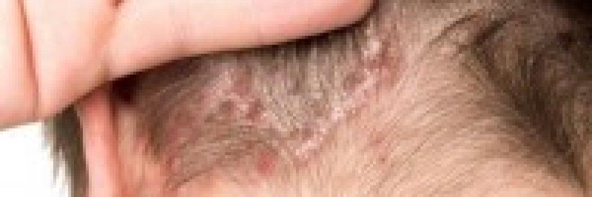 a fejbőr pikkelysömörének fotókezelése a lábán vörös folt, mint a kiütés