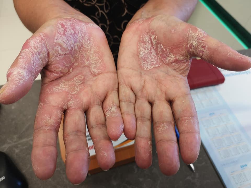a kezén vörös folt, mint egy zúzódás
