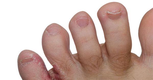 a lábujjakon lévő piros foltok gombák