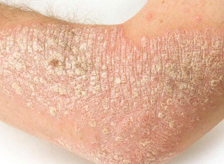 a pikkelysömör súlyosbodása otthoni kezelés vörös foltok az arcon száraz bőrrel