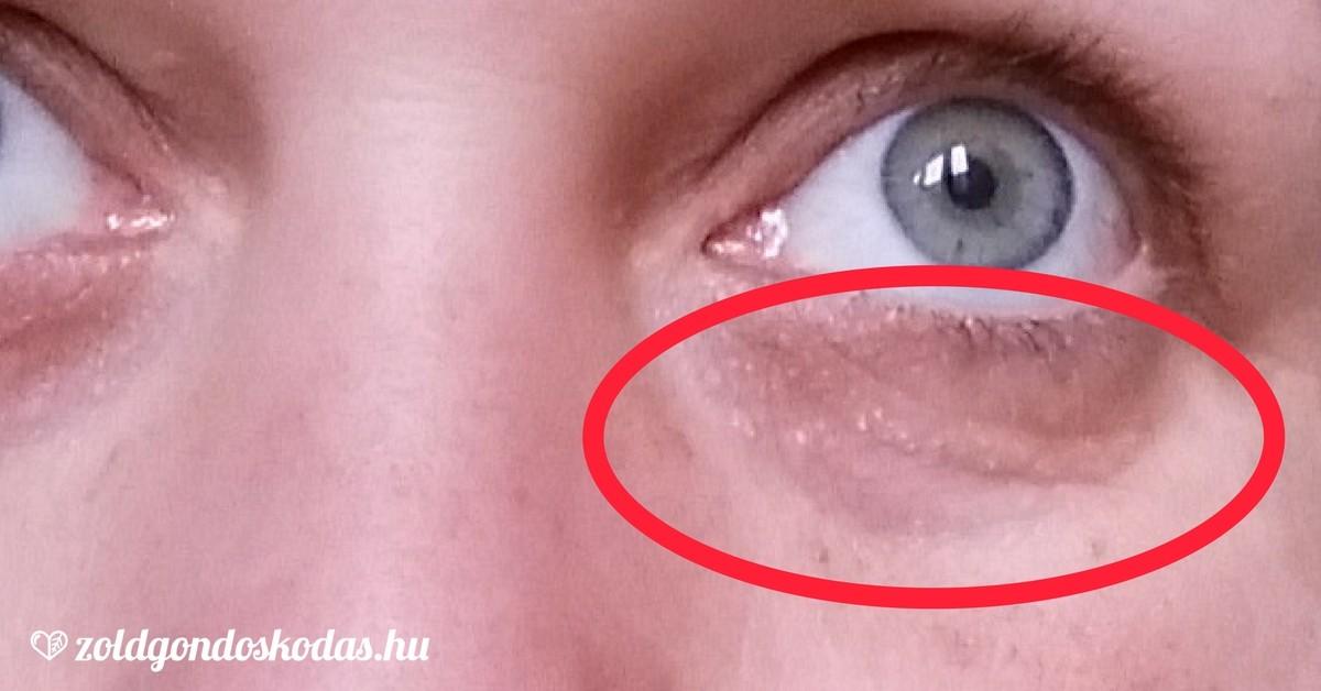 a szem duzzanata és vörös foltok az arcon)