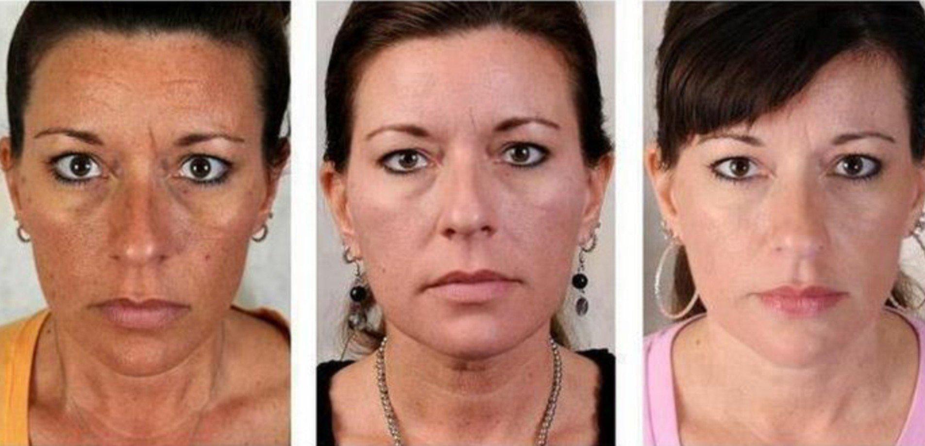 Titokzatos bőrbetegség - A vitiligo tünetei