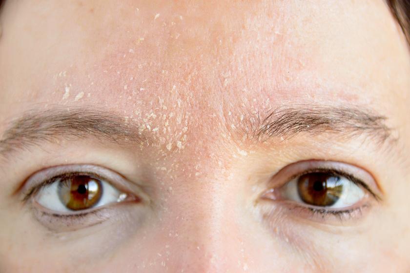 vörös szemek és vörös foltok az arcon)