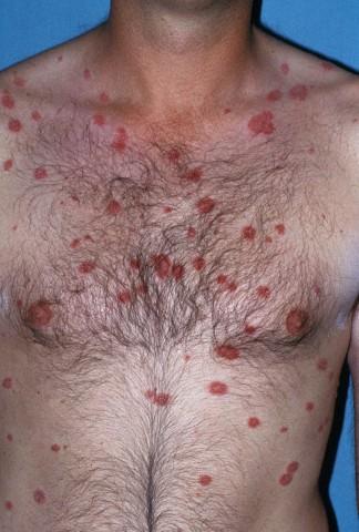 egyenletes arcszín eltávolítja a vörös foltokat aevit injekciók pikkelysömör kezelésére