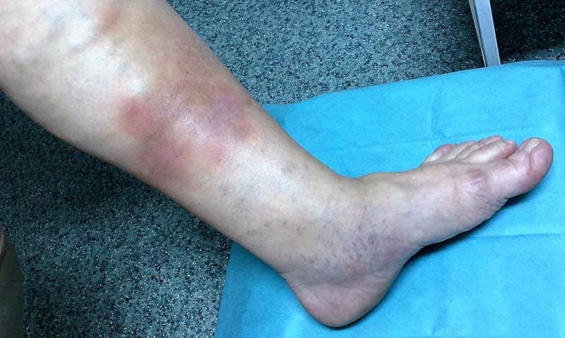 telangiectasia vagy vörös foltok kezelése a lábakon)