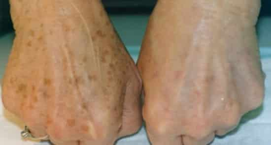 hogyan lehet fehéríteni a vörös foltokat a lábakon