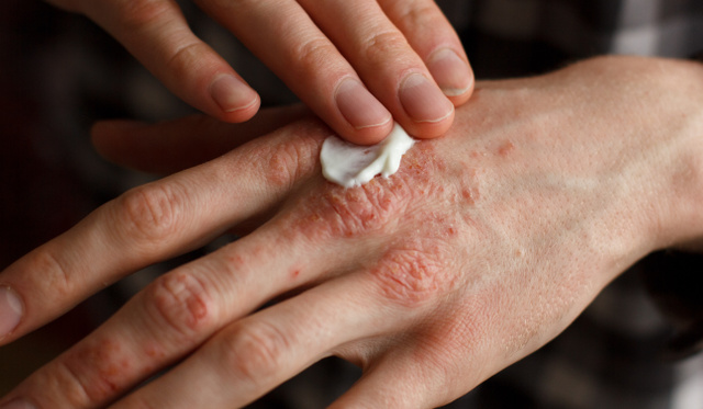 pikkelysömör és ekcéma hogyan kell kezelni pikkelysömör kezelése s táplls