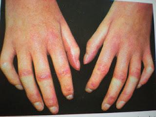 vörös foltok az ujjakon)
