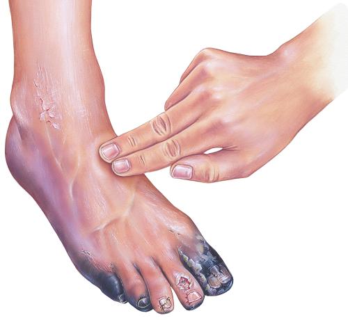 Diabéteszes láb tünetei és kezelése