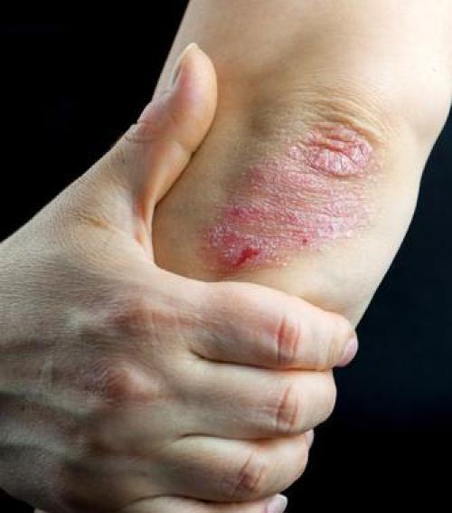 Psoriasis vulgaris | ezredev.hu