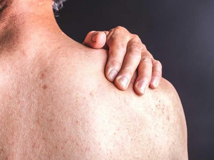 lokalizlt pustularis psoriasis kezels