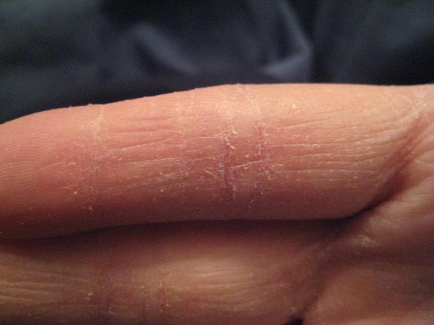 vörös folt a kézen az ujjak között)