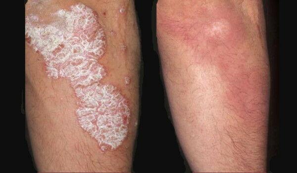 vörös foltok a bőrön a gombától pikkelysömör örökletes betegség kezelése