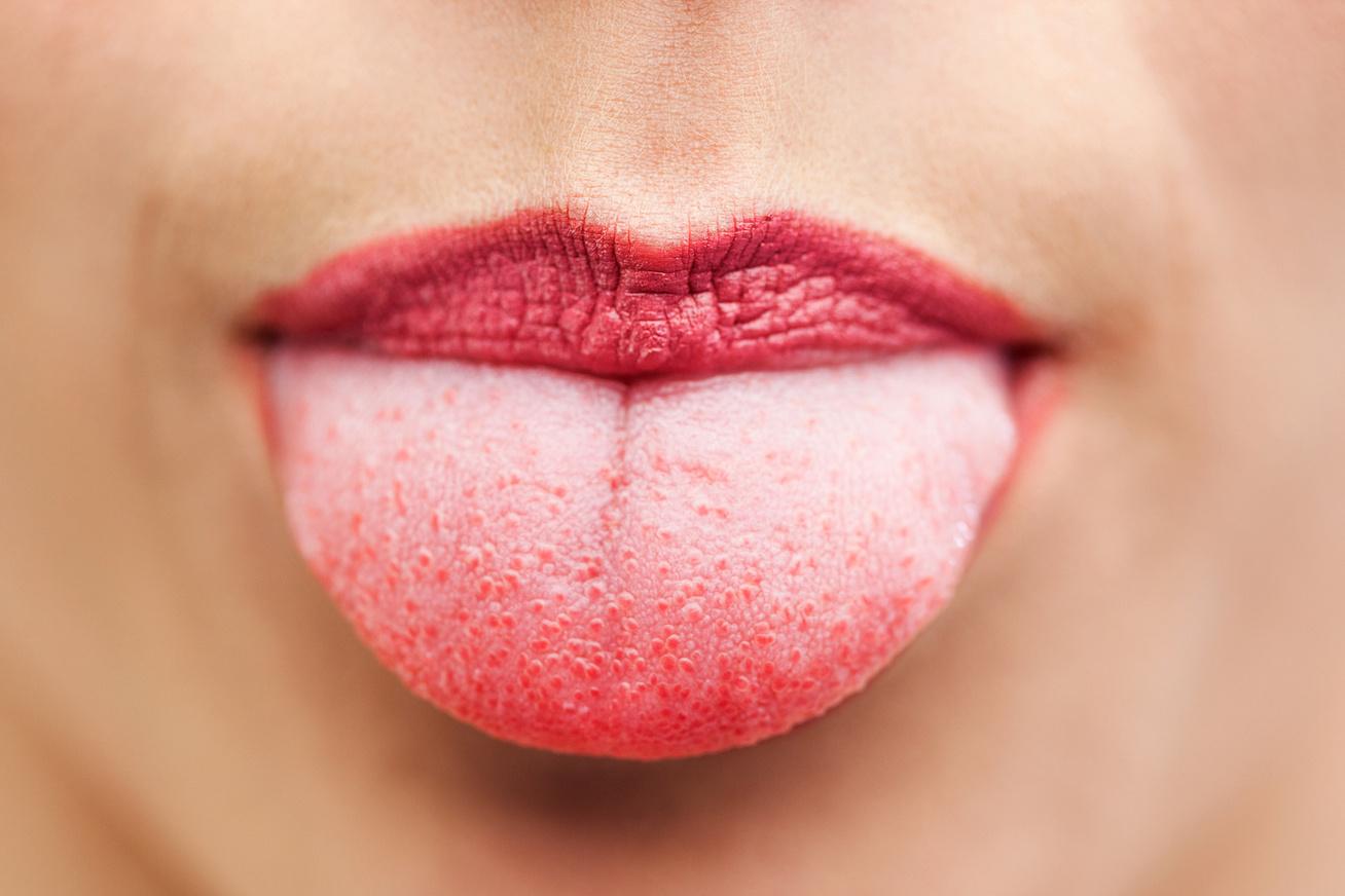 vörös viszkető foltok az ajkak sarkában)