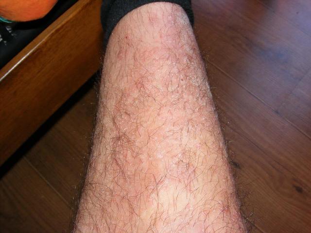 Lokom pikkelysömör kezelése