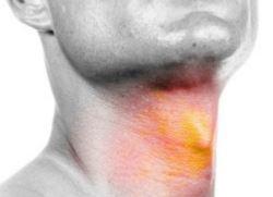 légyölő galóca kezelése pikkelysömörhöz vörös foltok vörös peremmel a peremű lábakon